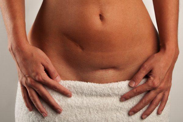 Ar-adhærencer efter abdominalplastik – træn og genoptræn før og efter din maveoperation