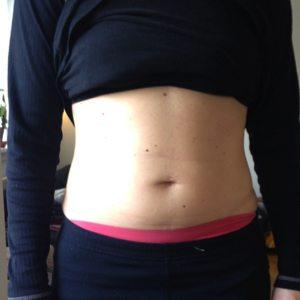 mavetræning efter kejsersnit