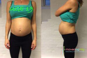 Rectus diastase gravid uge 19
