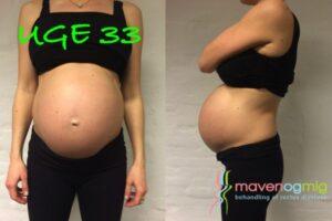 Gravid i uge 33, rectus diastase